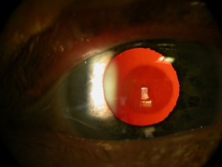 Cataract seen against the red reflection from the back of the eye