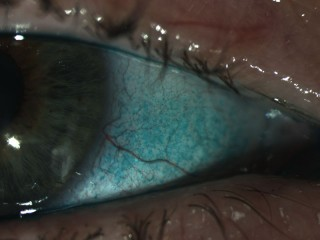 Green dye staining damaged areas in dry eye