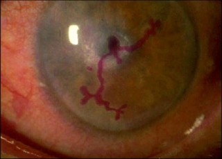 A dendritic ulcer due to herpes simplex epithelial keratitis